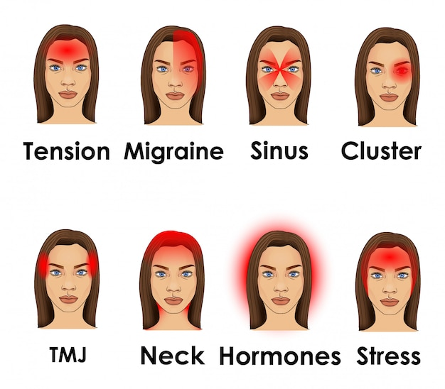 Types of headache illustrated on a woman face