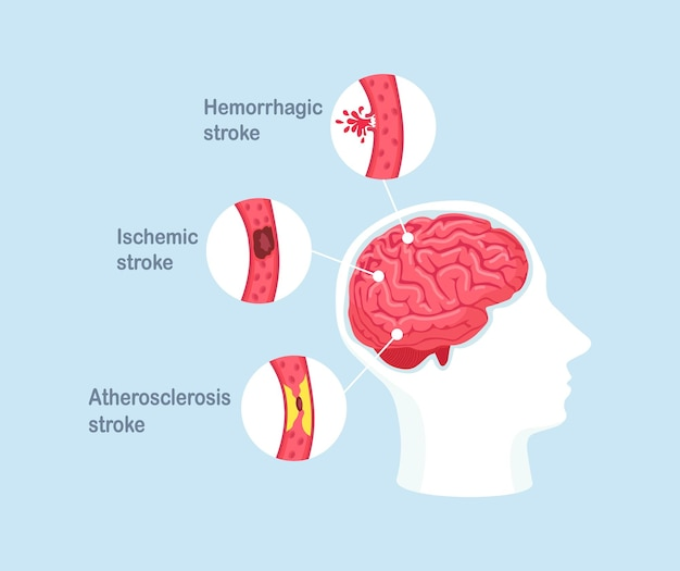 Types of human brain stroke. ischemic, atherosclerosis and hemorrhagic stroke disease