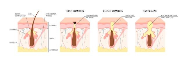 여드름의 종류 개방형 면포 폐쇄 면포 염증성 여드름 낭성 여드름