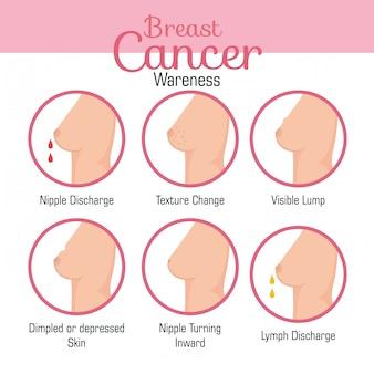 乳房の外観の種類
