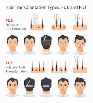 Типы трансплантации волос иллюстрации