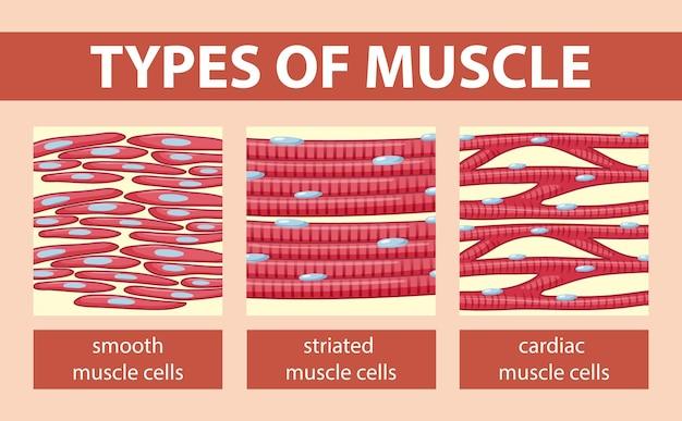 근육 세포 다이어그램의 유형