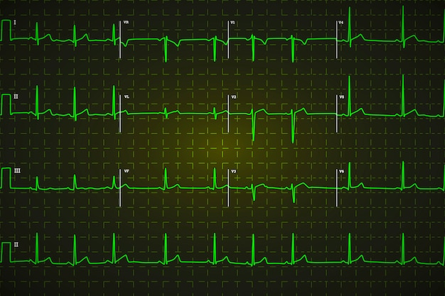 Typical human electrocardiogram, bright green graph on dark background