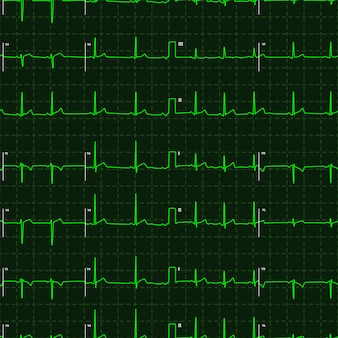 Typical human electrocardiogram green graph on dark background, seamless pattern