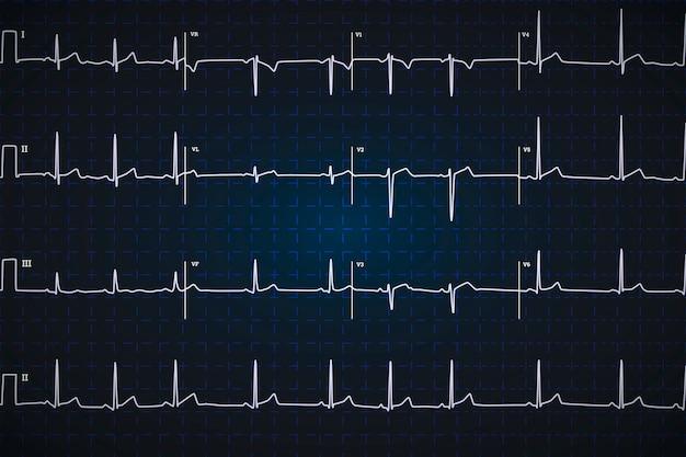 典型的な人間の心電図、暗い青色の背景に白いグラフ