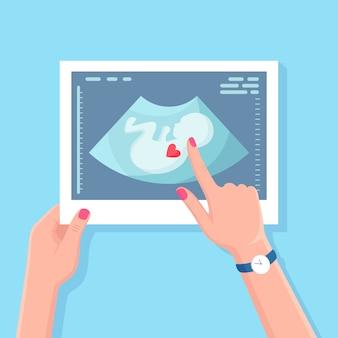 赤ちゃんの超音波スキャン。妊娠中の女性をスキャンするショット。医療診断と相談