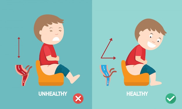 Unhealthy vs healthy positions to defecate