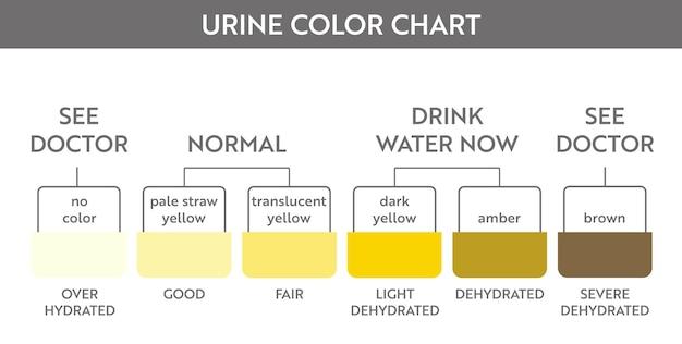 소변 색 차트입니다. 오줌 수화 및 탈수 테스트 스트립. 의료 교육 포스터에 대 한 벡터 디자인입니다.