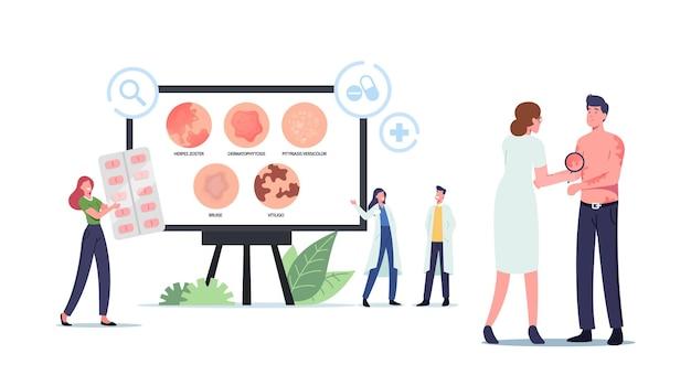 Симптомы крапивницы. персонажи крошечных врачей, представляющие инфографику кожных заболеваний, опоясывающего герпеса, дерматофитоза, разноцветного лишая, синяков и витилиго. мультфильм люди векторные иллюстрации