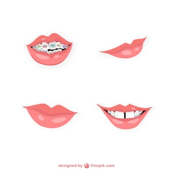 Variety of mouths