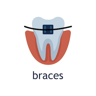Vector flat illustration of a tooth with brace