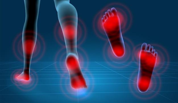 벡터 인간의 발입니다. 파란색 윤곽과 통증의 붉은 반점. 의학 및 정형 외과를 위한 준비 요소