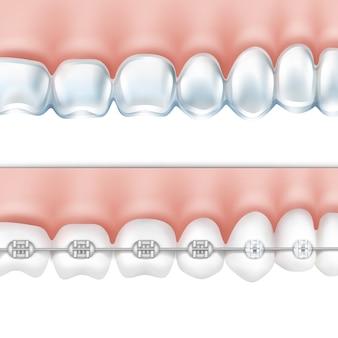 Вектор человеческие зубы с металлическими брекетами и отбеливающий лоток, вид сбоку, изолированные на белом фоне