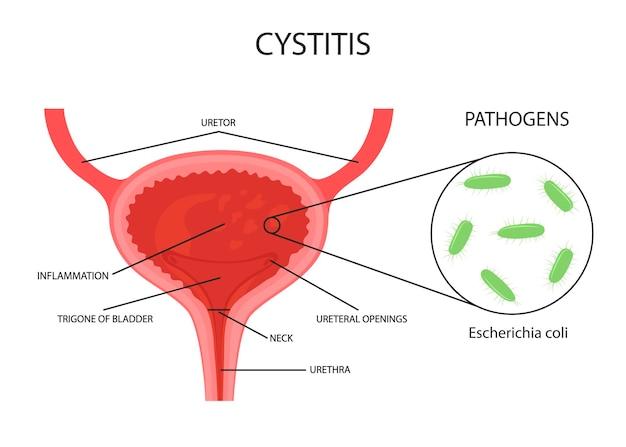 膀胱のベクトルイラスト。膀胱炎