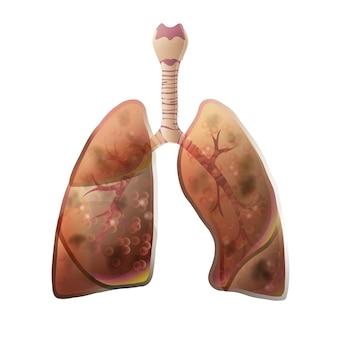 암 종양이 있는 폐 해부학의 벡터 격리된 그림입니다. 인간의 호흡기 시스템 아이콘입니다. 의료 의료 센터, 수술, 병원, 클리닉 로고. 내부 기증자 장기 기호 포스터