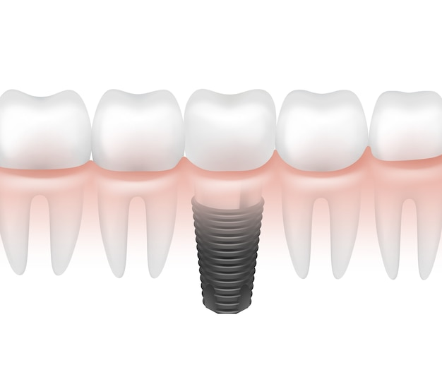 Vector metal dental implant between other teeth in gum side view isolated on white background