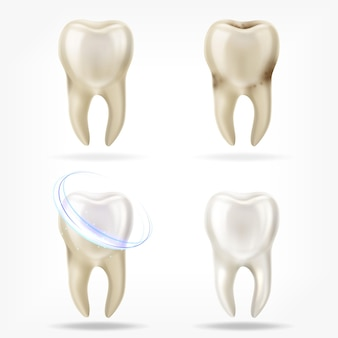 Vector set of 3d realistic clean and dirty tooth, clearing tooth process.