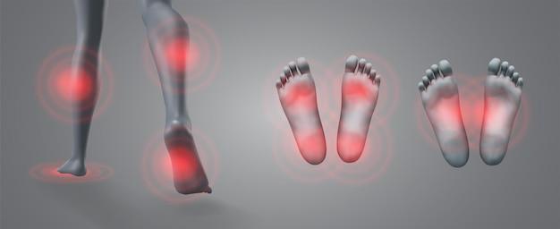 회색 배경에 빨간색 통증 패치가 있는 다리의 벡터 세트