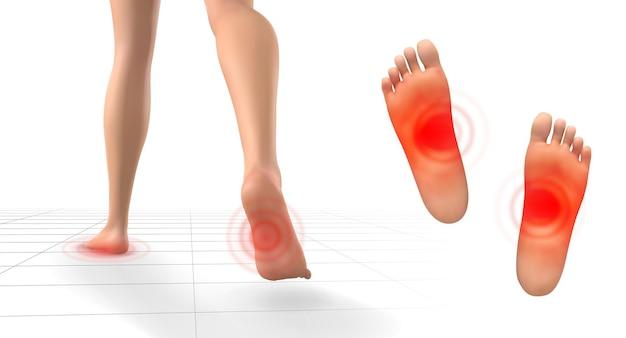흰색 배경에 통증의 붉은 패치가 있는 다리의 벡터 세트