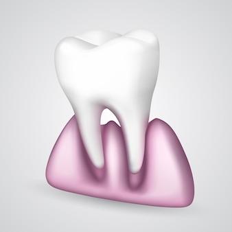 ベクターの歯が歯茎から落ちていた