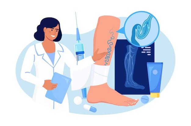 정맥 혈전증 및 정맥류 치료. 외과 의사는 혈관 질환을 치료하고 단단한 붕대를 감습니다. 병든 정맥이 있는 큰 발 근처의 의사입니다. 하지 동맥의 도플러 초음파촬영