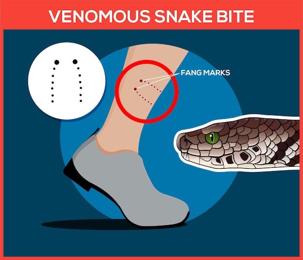 Venomous snake bite in the leg