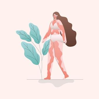 Мультфильм женщина витилиго в нижнем белье с дизайном листьев, тема любви и заботы о себе
