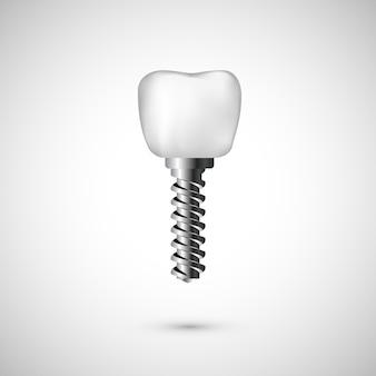 白のリアルな歯のインプラントのイラスト。白い背景の上の歯科医のケアと歯の修復医学の背景。