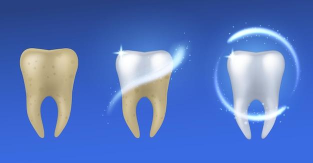 치아 미백. 에나멜 치료, 치과 치료 및 보호 전후의 현실적인 흰색 및 노란색 치아, 파란색 배경에 격리된 구강 위생 포스터 벡터 개념