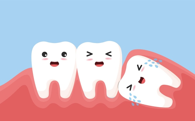 Wisdom tooth push other tooth. impacted wisdom tooth character pushing adjacent teeth causing inflammation, toothache, gum pain. illustration