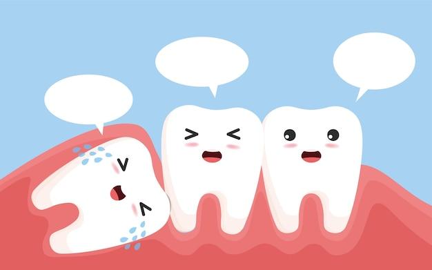 사랑니는 다른 치아를 밀어냅니다. 염증, 치통, 잇몸 통증을 유발하는 인접한 치아를 밀어내는 영향을받은 사랑니 캐릭터.