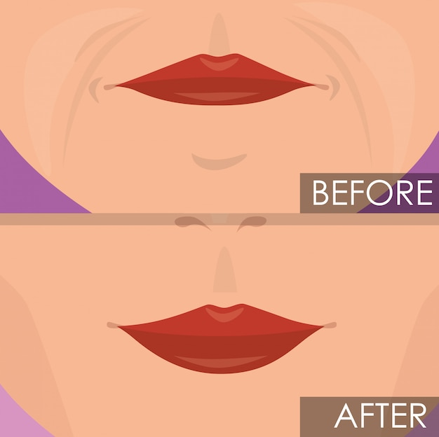 Woman lips before and after treatment