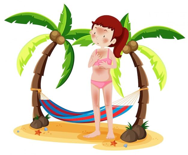 Woman sunburnt on beach