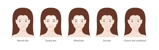 Women`s types of skin: normal, greasy, mixed, dry skins and chronic skin conditions