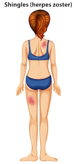 Women with shingles herpes zoster