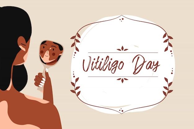 세계 백반증의 날. 피부 문제가 웃는 여자 vitiligo 거울에 그녀의 반사를 쳐다보고. 자신을 받아들이고, 자기 사랑, 피부병 및 신체 긍정적