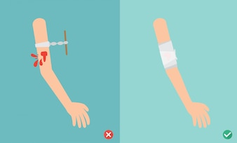 Wrong and right ways first aid emergency treatment,illustration