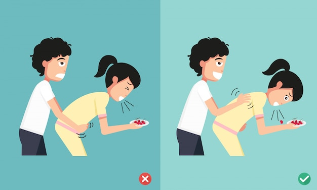 Wrong and right ways first aid,man giving choking woman,illustration