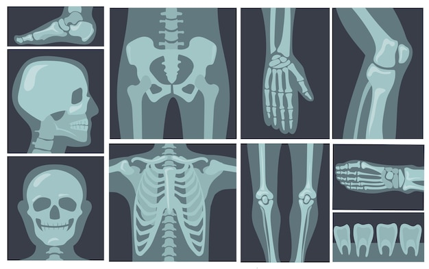 X-ray shots of human body