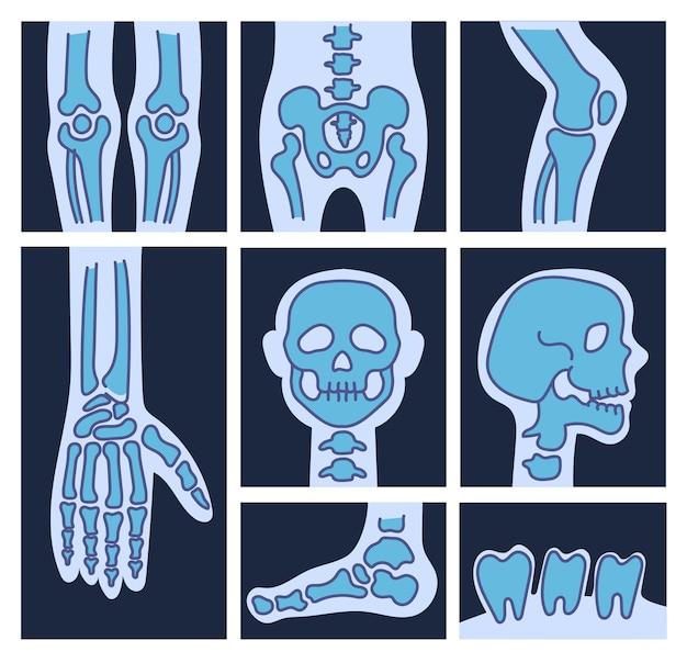 X 선 해골 뼈 두개골 발 손가락 다리 치아 고립 된 세트