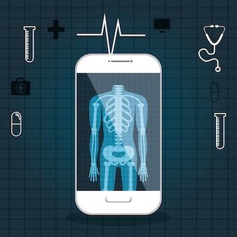 分離されたx線デジタル医療ヘルスケア