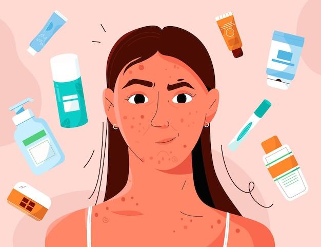 어린 소녀는 여드름과 반점으로 피부 문제가 있습니다.