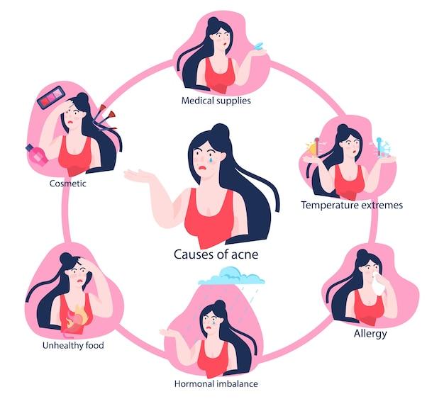 친척에 여드름을 가진 젊은 여자. 감염, 피부병에 문제가있는 피부. 여드름의 원인.