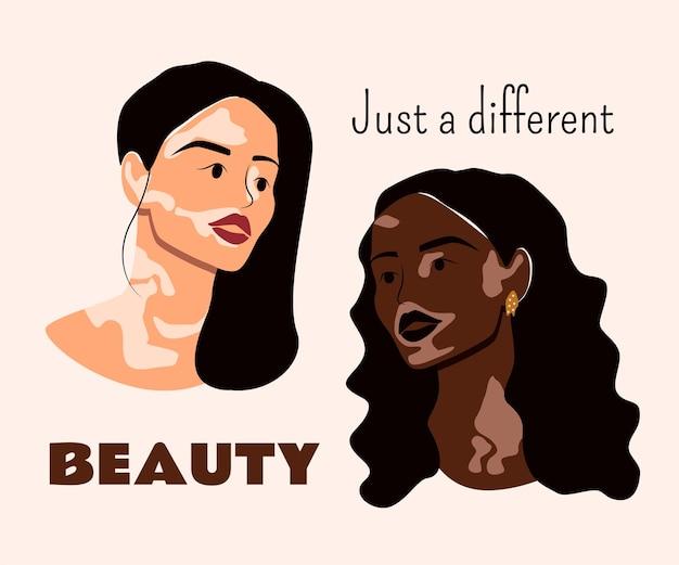 若い女性は白斑と一緒に暮らすさまざまな美しさの自己愛と白斑皮膚病の概念ベクトル