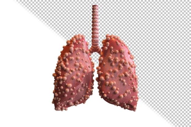 Die menschliche lunge ist mit covid19 infiziert