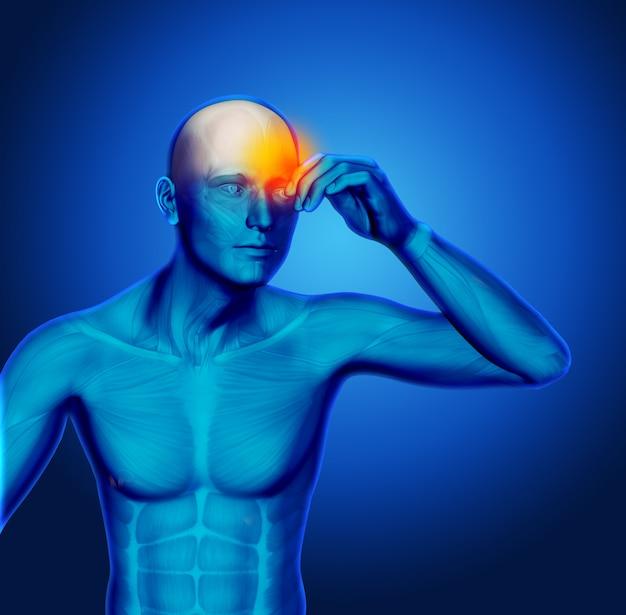 3d figure médicale bleue tenant tête dans la douleur