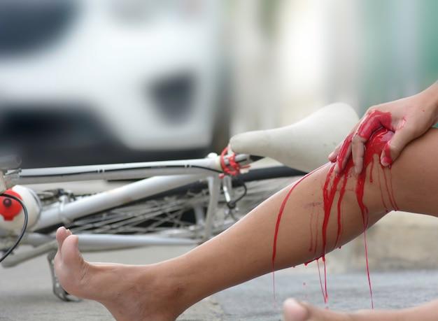 Accident d'une bicyclette est entré en collision avec une voiture