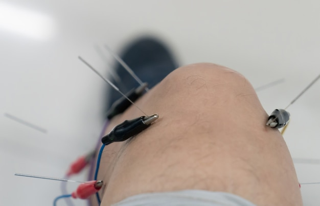 Acupuncture, médecine chinoise