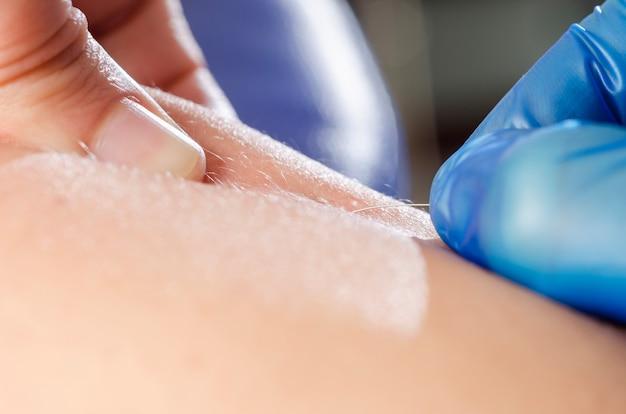 Aiguille et mains du physiothérapeute effectuant un aiguilletage à sec.