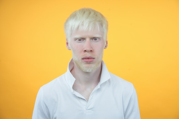 Albinisme homme albinos en studio t-shirt habillé isolé sur fond jaune. écarts anormaux. apparence inhabituelle